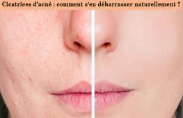 Si l'acné peut se montrer parfois tenace, elle laisse des traces de son passage. La bête noire de toutes celles qui ont vaincu les boutons : les cicatrices. Vous avez des cicatrices d'acné qui vous gâchent la vie ? Suivez le guide et découvrez les remèdes naturels pour les combattre.