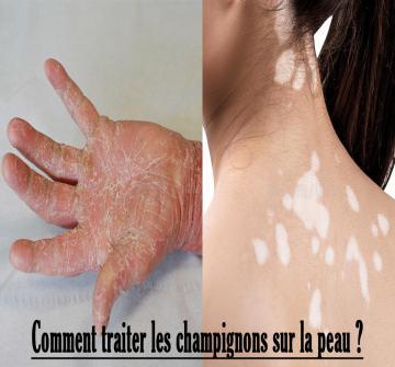 Les champignons qui poussent sur la peau sont le résultat d'infections causées par différents agents tels que les dermatophytes et également les levures. Comment éliminer les champignons sur la peau à l'aide de remèdes maison ?