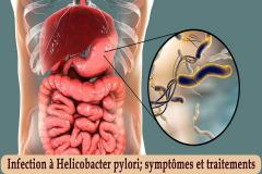 Saviez-vous l'Helicobacter pylori est responsable de l'infection bactérienne chronique la plus répandue ? Environ 20 à 25 % de la population serait porteuse de ce germe en France et 50 % dans le monde entier. C'est peut-être une explication si vous souffrez de maux gastriques régulièrement.