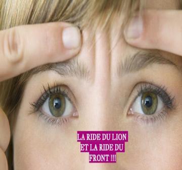 Les rides d'expression sont le résultat des contractions naturelles des muscles de notre visage quand on plisse les yeux ou fronce les sourcils.