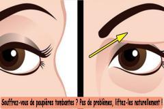 Beaucoup de gens en souffre : les paupières tombantes. Lorsque vous avez des paupières tombantes, la peau de la paupière supérieure ou inférieure tombe sur l'œil. À cause de ça, vous avez l'air fatigué. En plus des restrictions cosmétiques, ceci peut également engendrer une déficience visuelle.