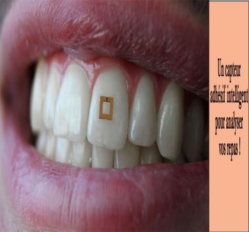 Des chercheurs américains ont développé un capteur adhésif à coller sur une dent qui peut analyser la consommation de glucose, de sel et d'alcool et transmettre les informations à un smartphone.