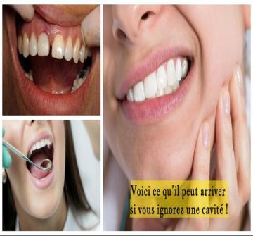 Ne repoussez jamais une visite chez le dentiste si vous suspectez avoir une cavité.Voici ce qu'il peut se passer si vous négligez une cavité sur l'une de vos dents
