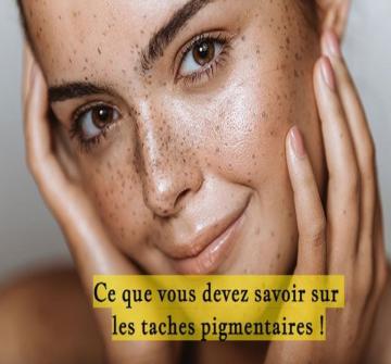 Les taches pigmentaires : certains pensent qu'elles sont jolies et uniques alors que d'autres préfèreraient s'en débarrasser définitivement.