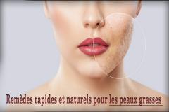Quand vous avez la peau grasse, vos glandes sébacées produisent une surabondance de sébum, la substance cireuse qui protège votre peau. Quand il y en a trop, la peau semble grasse et le surplus de sébum peut contribuer à l'apparition de boutons d'acne.